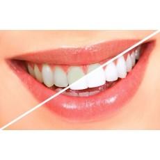 Stylo de blanchiment des dents -DAZZLING WHITE